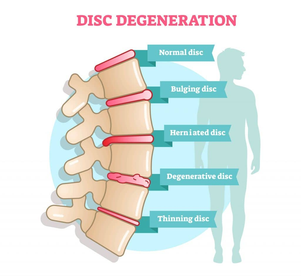 Disc Degeneration Diagram Rolling Hills Medical