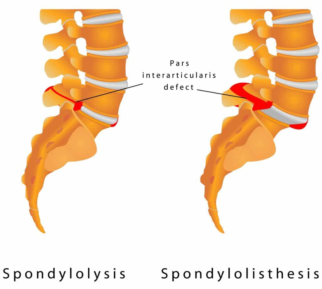 Spondylolysis Treatment in Torrance CA