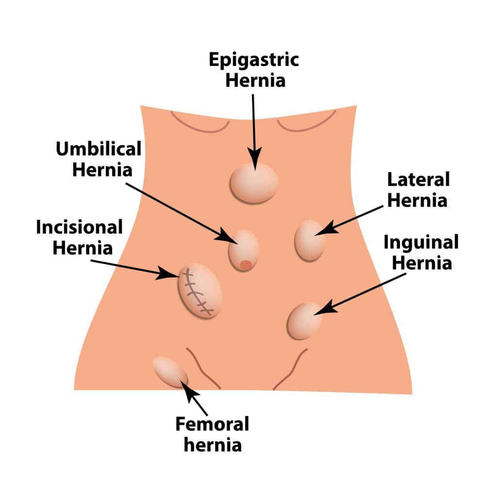 Hernia Types treated in torrance