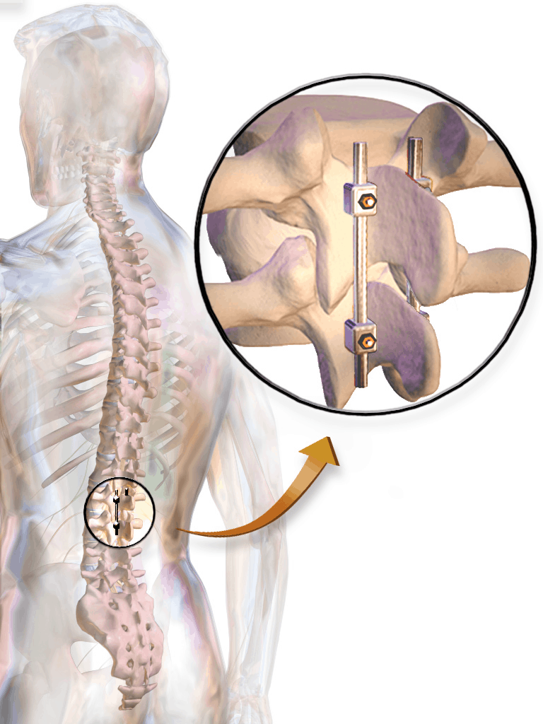 Fusion surgery for degenerative disc disorder