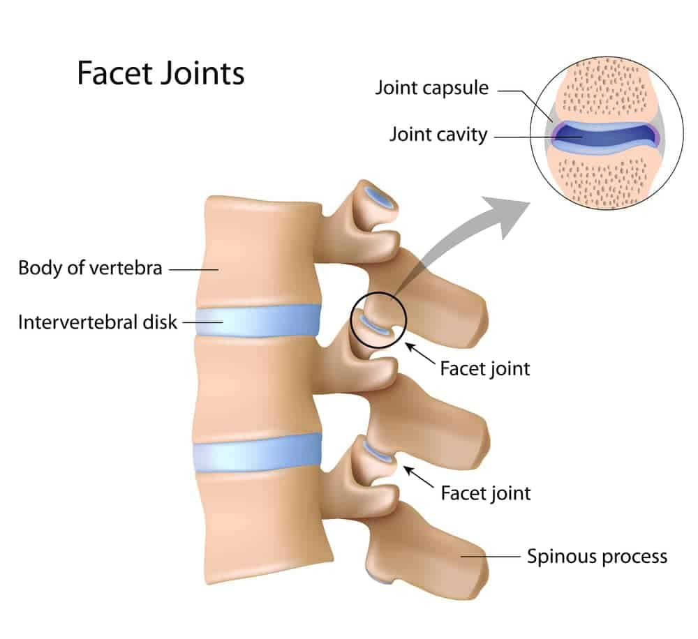 facet joint injection treatment in Torrance