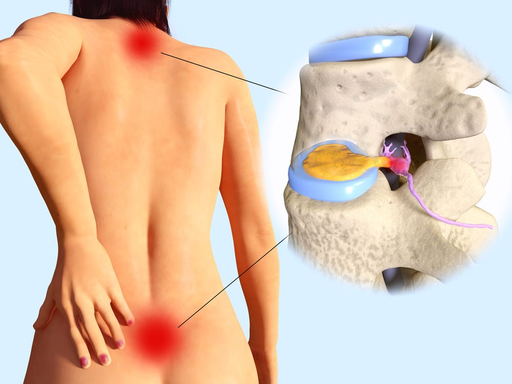 animation of a herniated disc