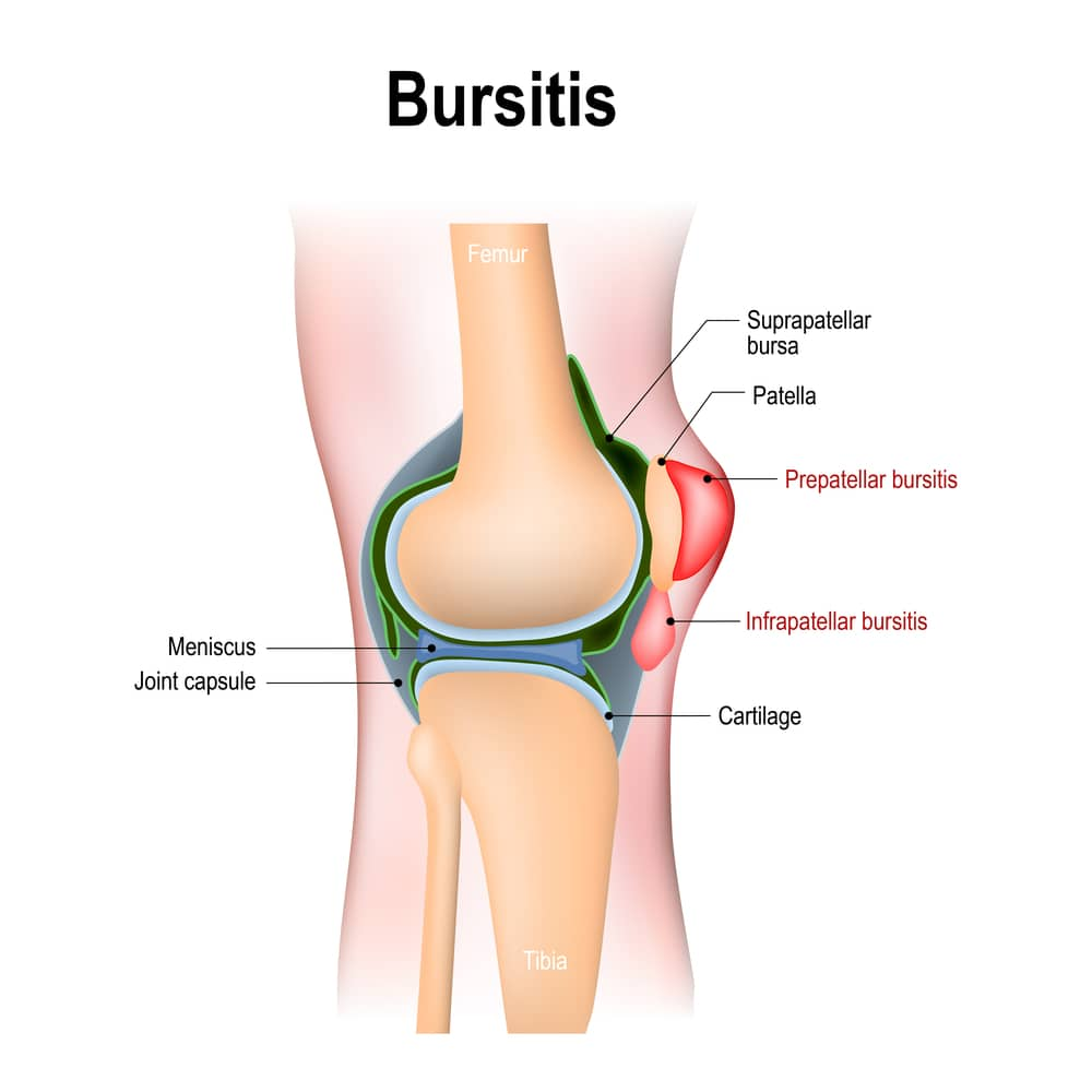 Knee Bursitis