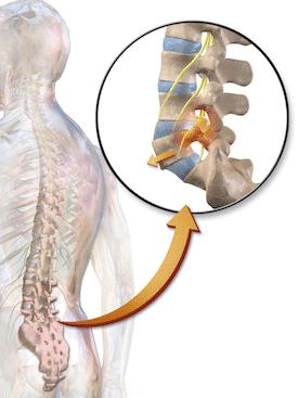 Animation of human spine with Spondylolisthesis