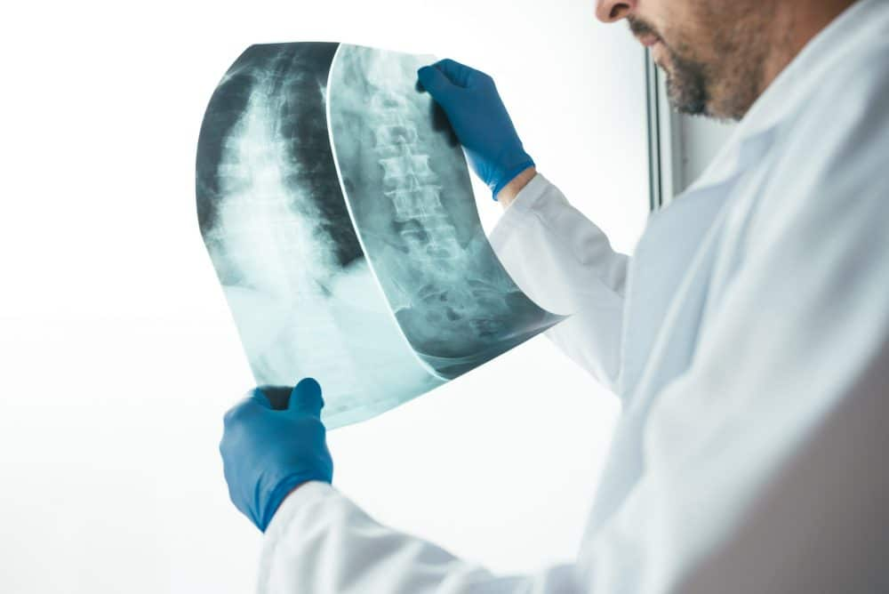 doctor looking at patient x-rays