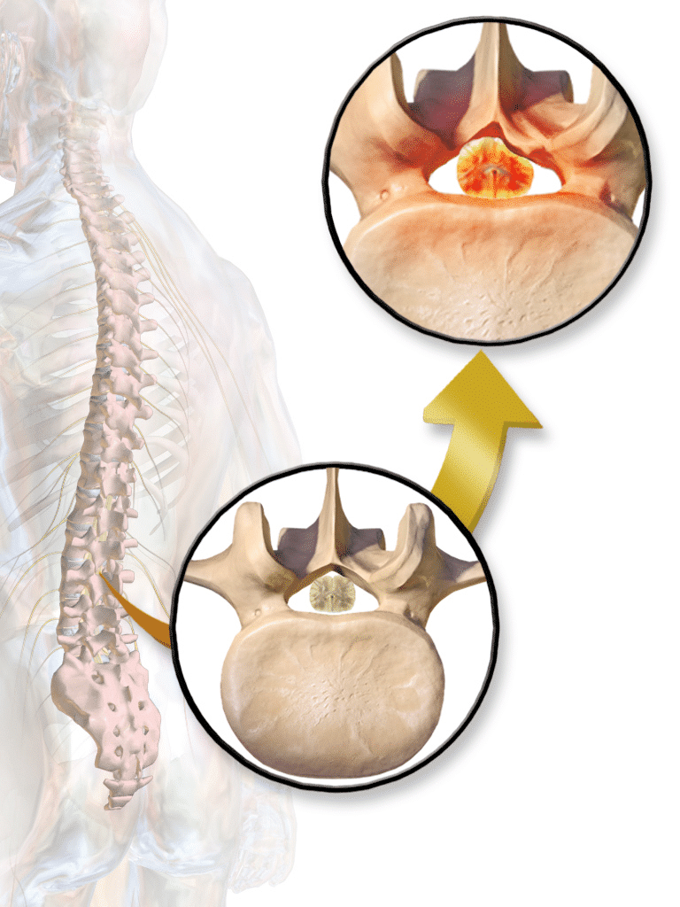 3d figure of a skeleton with spinal stenosis
