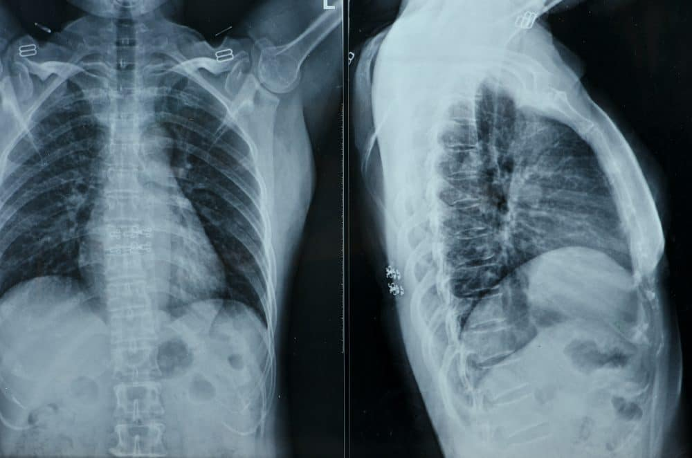 x-ray image of a patients upper back
