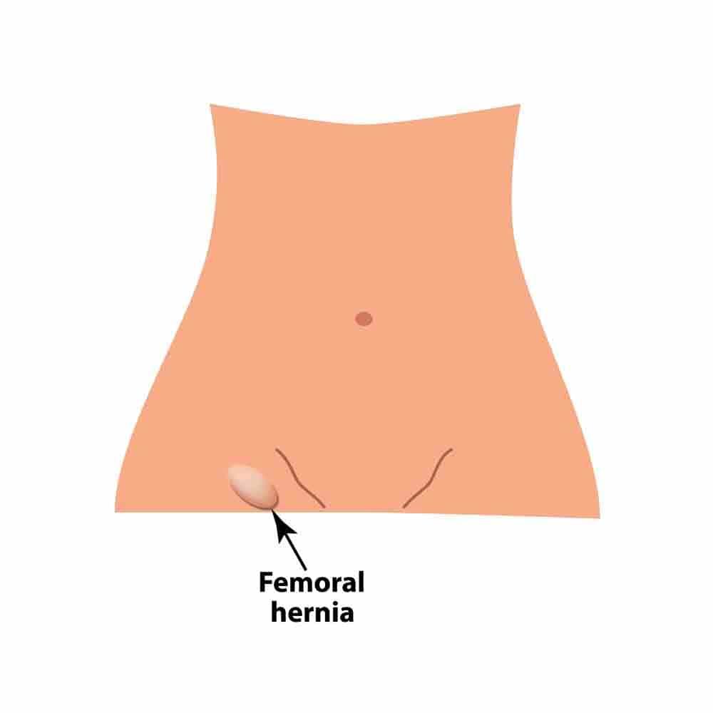 Femoral Hernia Diagram