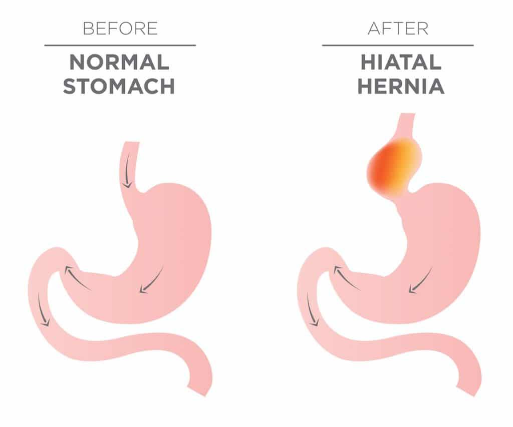 Diagram of a Normal Stomach vs Hiatal Hernia.
