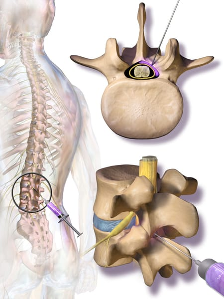 Epidural Steroid Injections offered at Rolling Hills Medical.